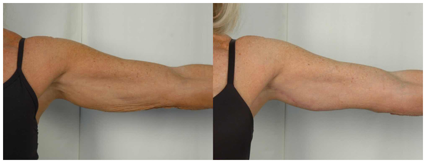 Before and After Photo of Female Patient's Sculpted Arm