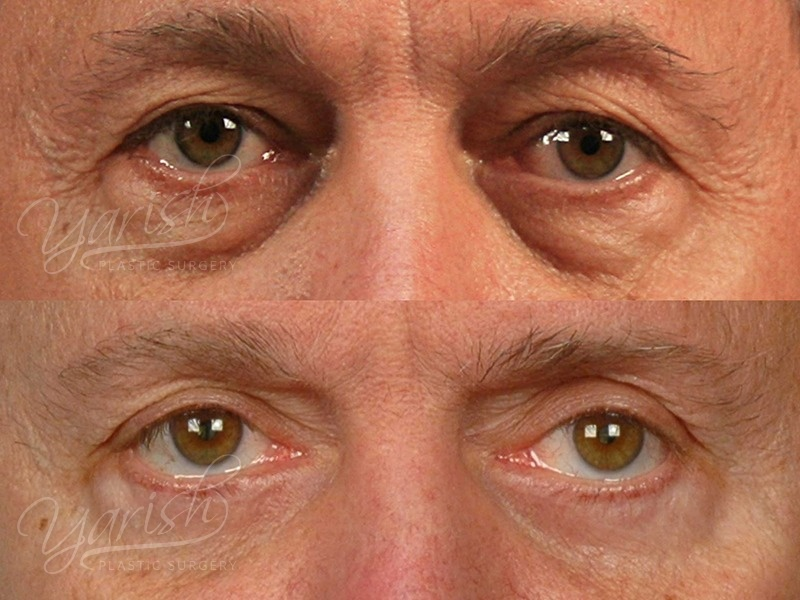 Patient 1 Blepharoplasty Before and After Front View