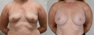Patient 1 Breast Augmentation Before and After Front View
