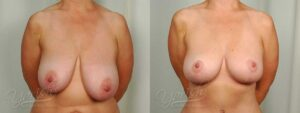 Patient 6 Breast Reduction Before and After Front View