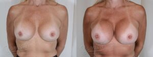 Patient 1 Breast Revision Before and After Front View