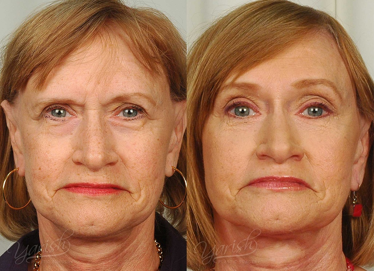 Patient 1 Brow Lift Before and After Front View