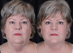 Patient 1 Face Lift and Neck Lift Before and After Front View