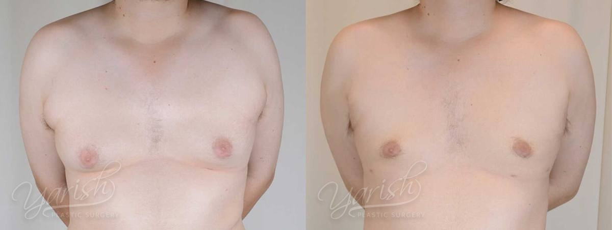 Patient 1 Gynecomastia Before and After Front View