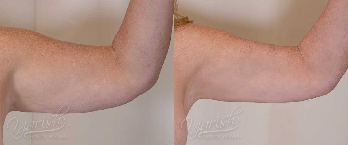 Patient 1 Liposuction Before and After Left Arm Front View