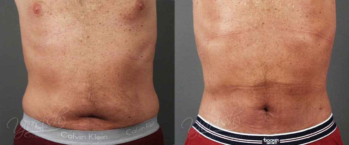Patient 1 Male Liposuction Before and After Tummy View