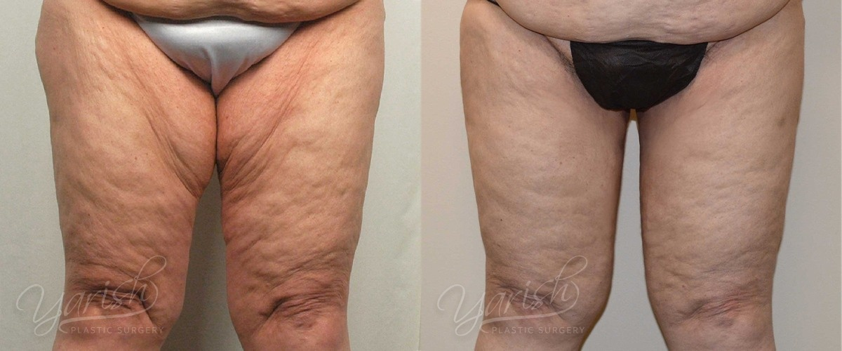 Patient 1 Thigh Lift Before and After Front View