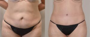 Patient 1 Tummy Tuck Before and After Front View