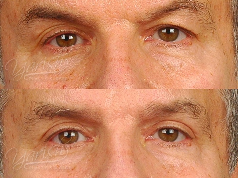 Patient 2 Blepharoplasty Before and After Front View