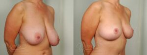 Patient 6 Breast Reduction Before and After Right Oblique View