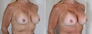 Patient 1 Breast Revision Before and After Right Oblique View