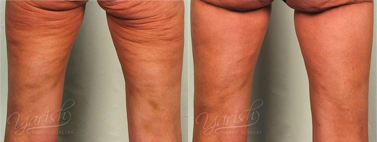 Patient 2 Cellulaze Before and After Back View