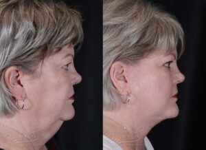 Patient 1 Face Lift and Neck Lift Before and After Right Side View