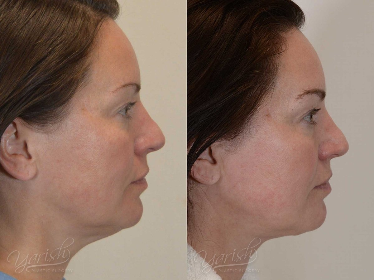 Patient 2 Facetite Before and After Right Side View