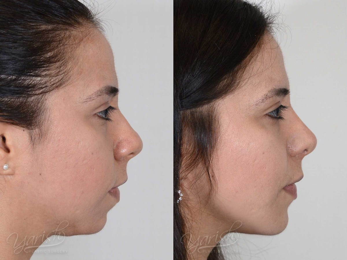Patient 2 Facial Implants Before and After Right Side View