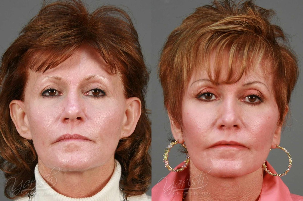 Patient 2 Otoplasty Before and After Front View