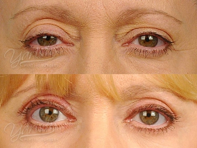 Patient 3 Blepharoplasty Before and After Front View