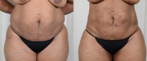 Patient 2 BodyTite Before and After Photo - Belly