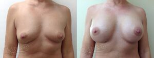 Patient 2 Breast Augmentation Before and After Front View