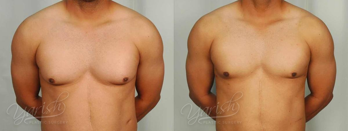 Patient 2 Gynecomastia Before and After Front View