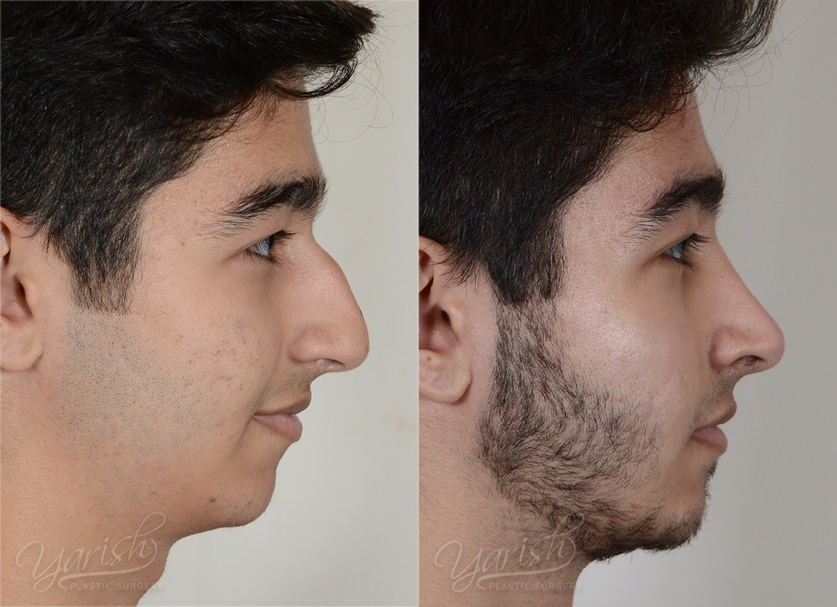 Patient 9 Rhinoplasty Before and After Right Side View