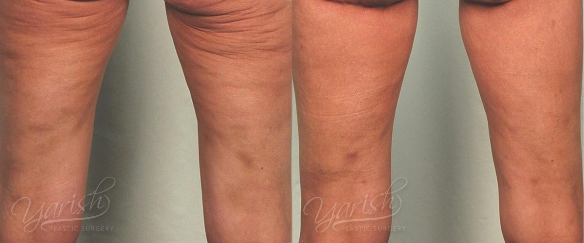 Patient 2 Thigh Lift Before and After Back View