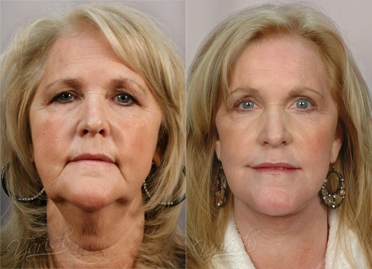 Patient 4 Brow Lift Before and After Front View