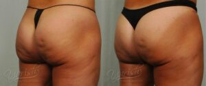 Patient 4 Cellulaze Before and After Front View