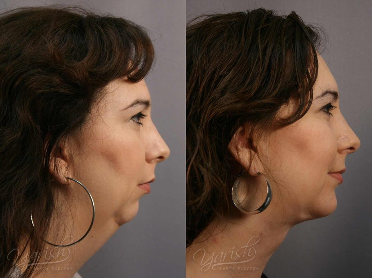 Patient 4 Facial Implants Before and After Right Side View