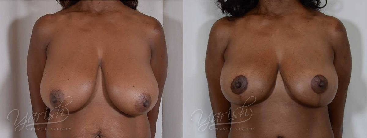 Patient 8 Breast Reduction Before and After Front View