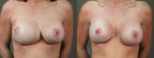 Patient 3 Breast Revision Before and After Front View