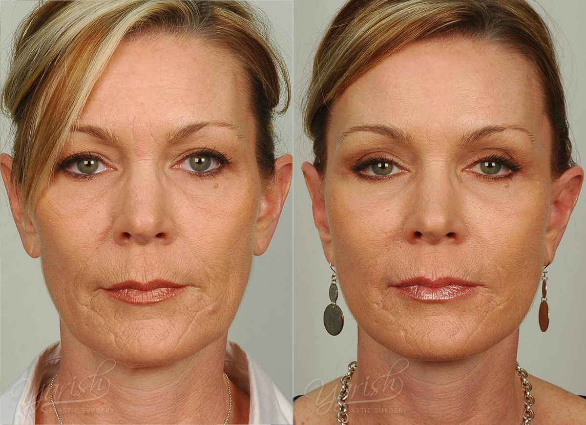 Patient 5 Brow Lift Before and After Front View