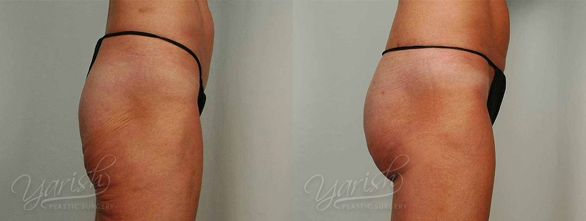 Patient 3 Brazilian ButtLift Before and After - Side View