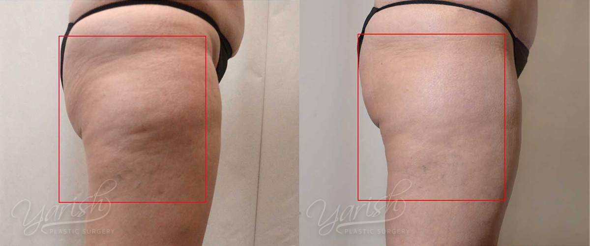 Patient 1 Cellulaze Before and After Right Side View