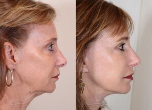 Patient 3 Face Lift and Neck Lift Before and After Right Side View