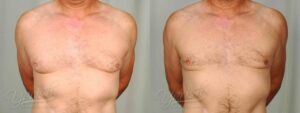 Patient 3 Gynecomastia Before and After Front View