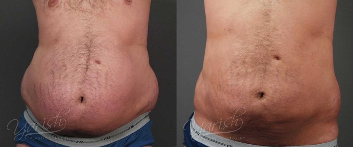 Patient 2 Male Liposuction Before and After Chest Front View