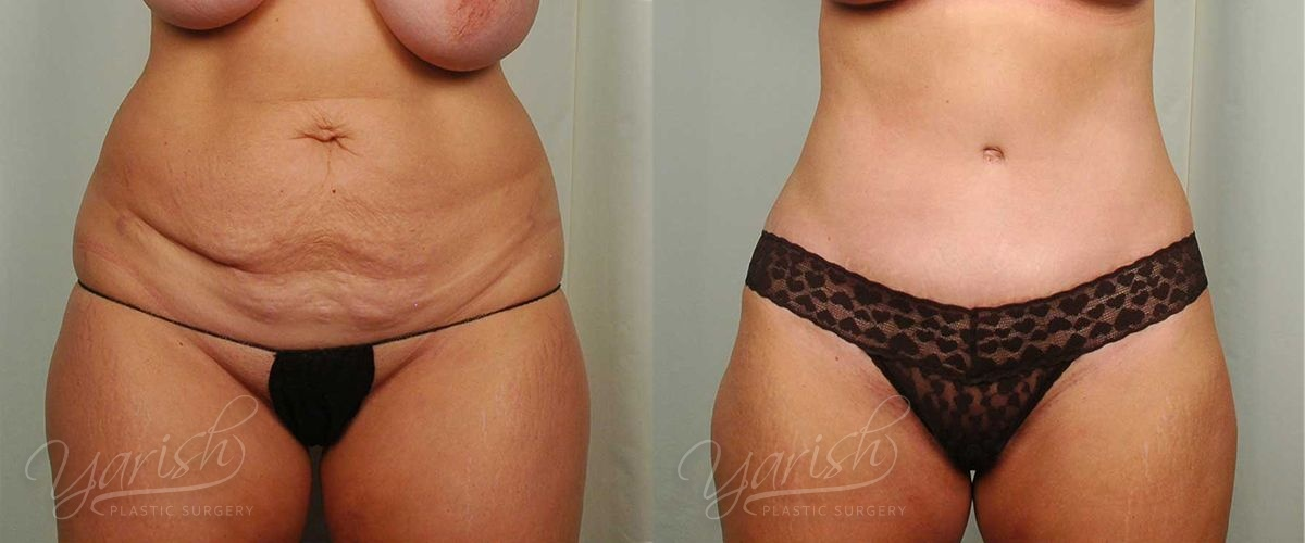 Patient 3 Tummy Tuck Before and After Front View