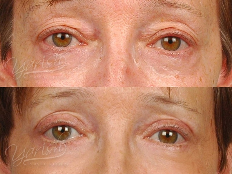 Patient 6 Blepharoplasty Before and After Front View