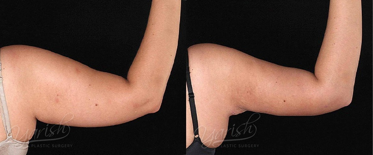 Patient 4 BodyTite Before and After Photo - Arm