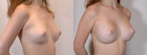 Patient 3 Breast Augmentation Before and After Right Oblique View