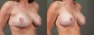 Patient 3 Breast Revision Before and After Right Oblique View