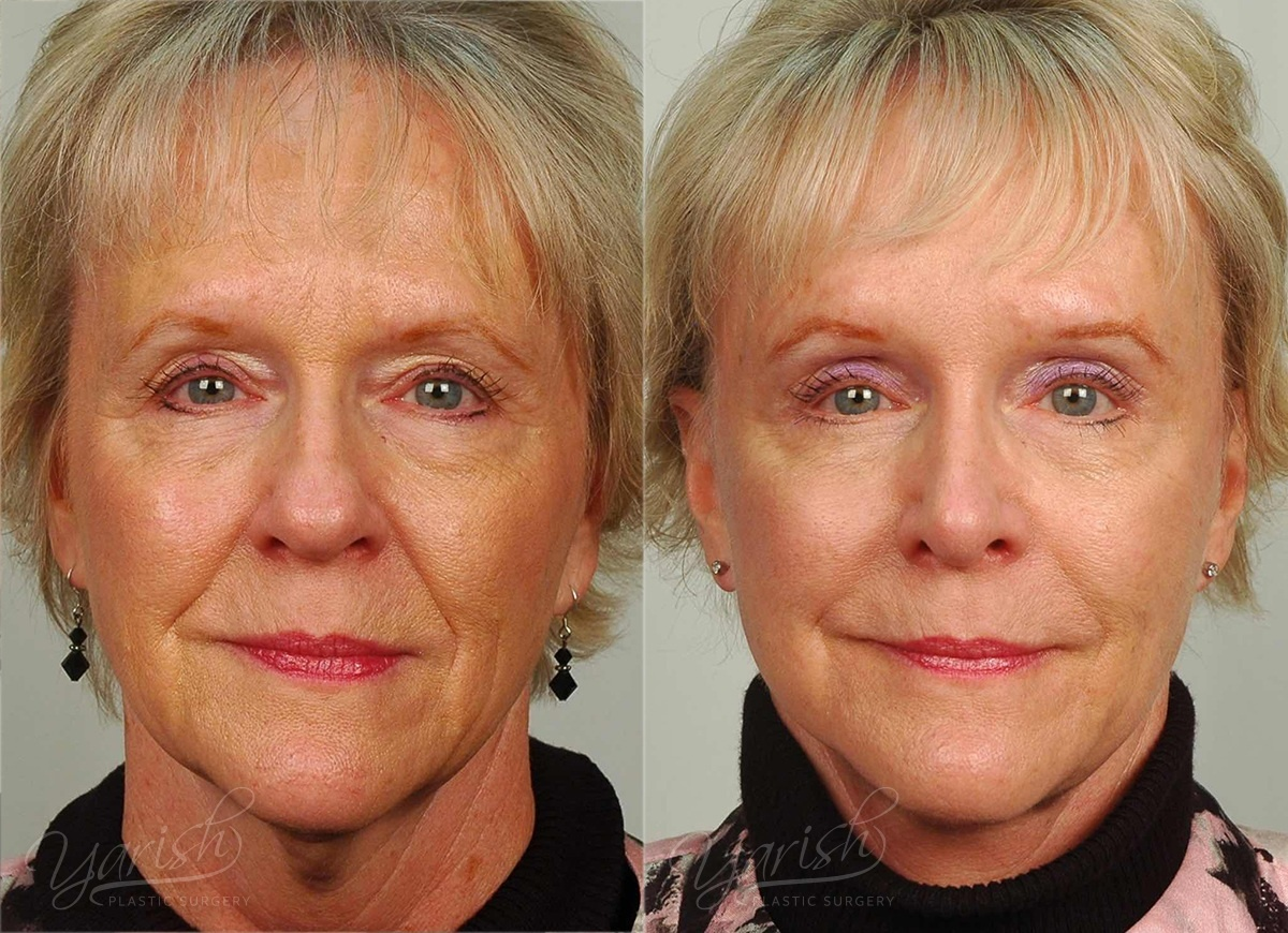 Patient 6 Brow Lift Before and After Front View