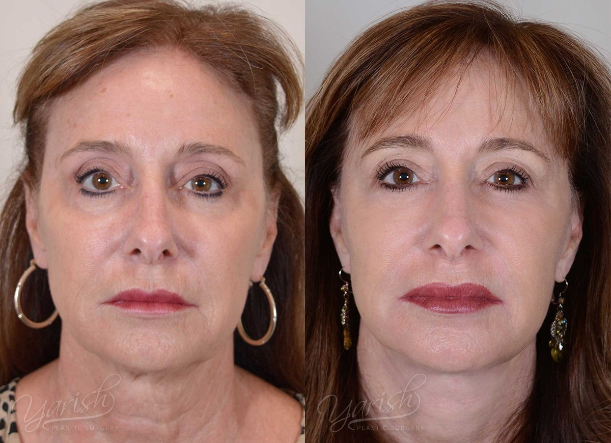 Patient 3 Face Lift and Neck Lift Before and After Front View