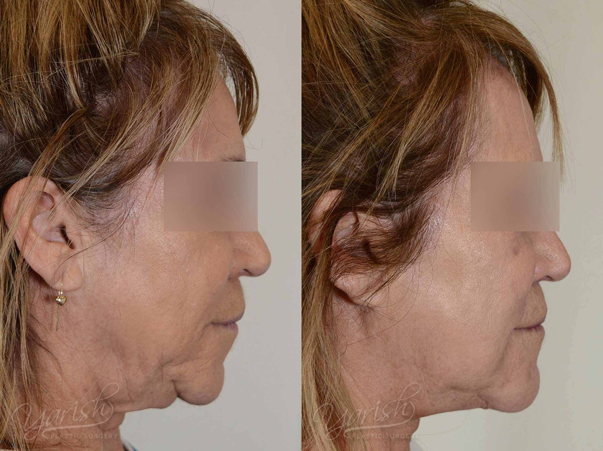 Patient 5 Facetite Before and After Right Side View