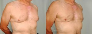 Patient 3 Gynecomastia Before and After Right Oblique View