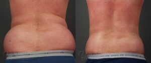 Patient 2 Male Liposuction Before and After Chest Back View