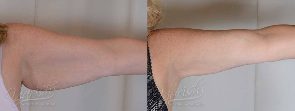 Patient 4 Brachioplasty Before and After Photo