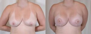 Patient 1 Breast Augmentation with Mastopexy Before and After Front View