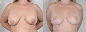 Patient 6 Breast Augmentation with Mastopexy Before and After Front View